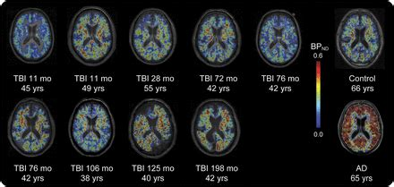 Amyloid pathology and axonal injury after brain trauma
