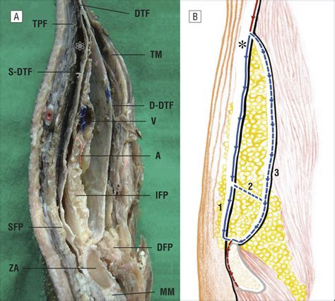Temporal Branch of the Facial Nerve and Its Relationship